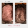irestore-pro-laser-hair-growth-system-sverige-harvaxt-mot-haravfall-3
