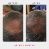 irestore-pro-laser-hair-growth-system-sverige-harvaxt-mot-haravfall-7