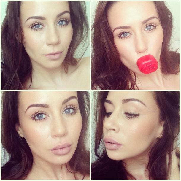 större läppar utan ingrepp